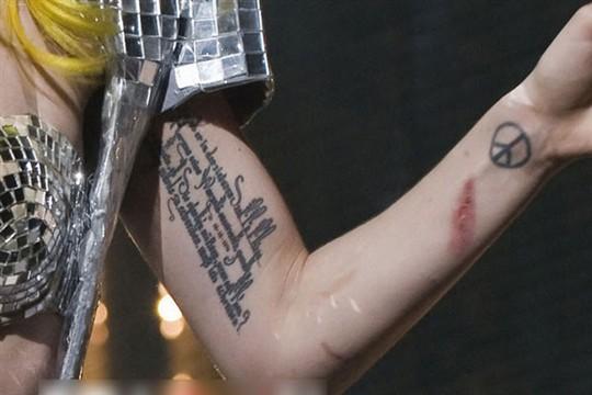 """高悬赏 给好评     为了解决用户可能碰到关于""""手臂上的疤痕 想纹身"""